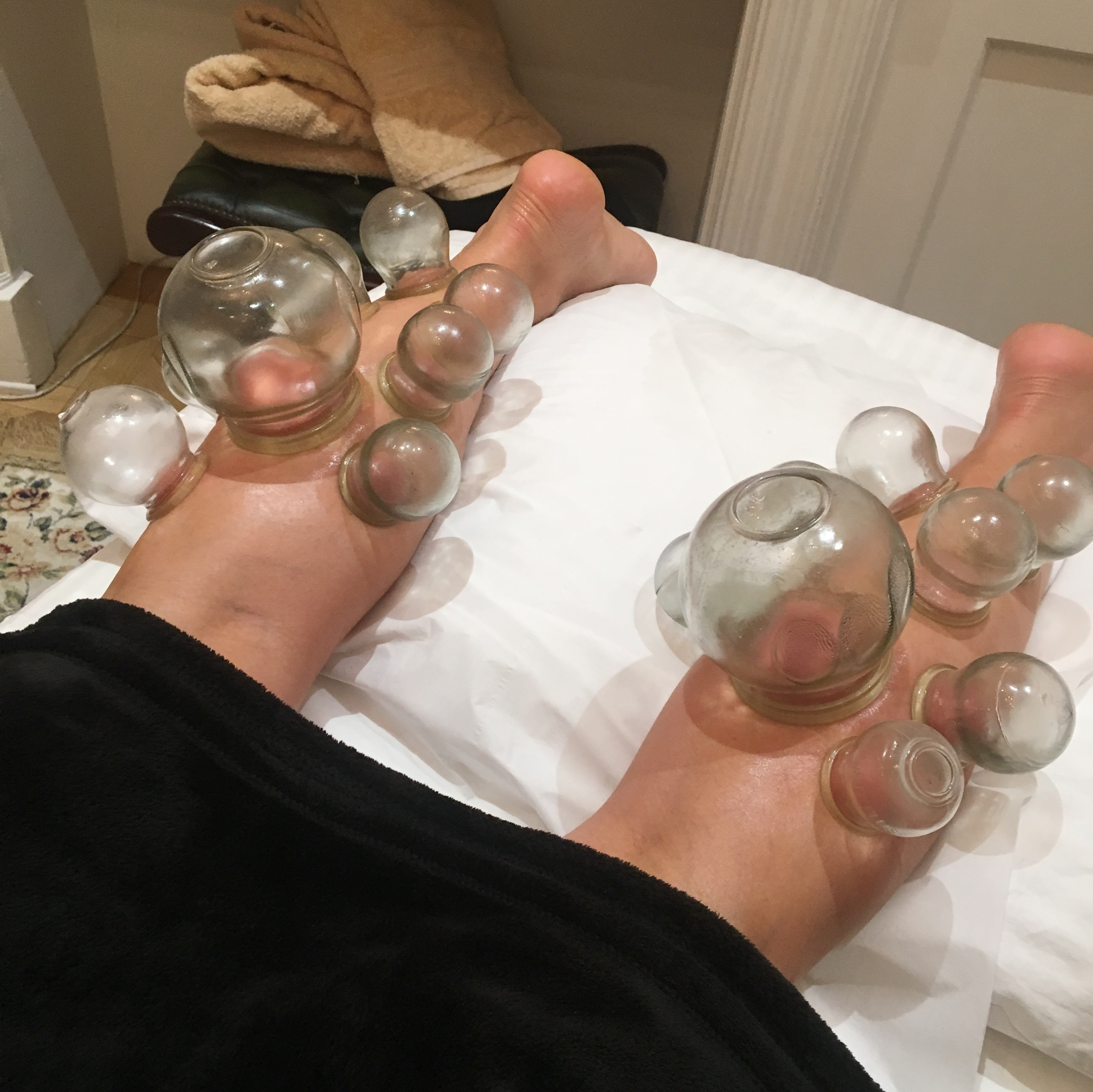 Wendy Cupping