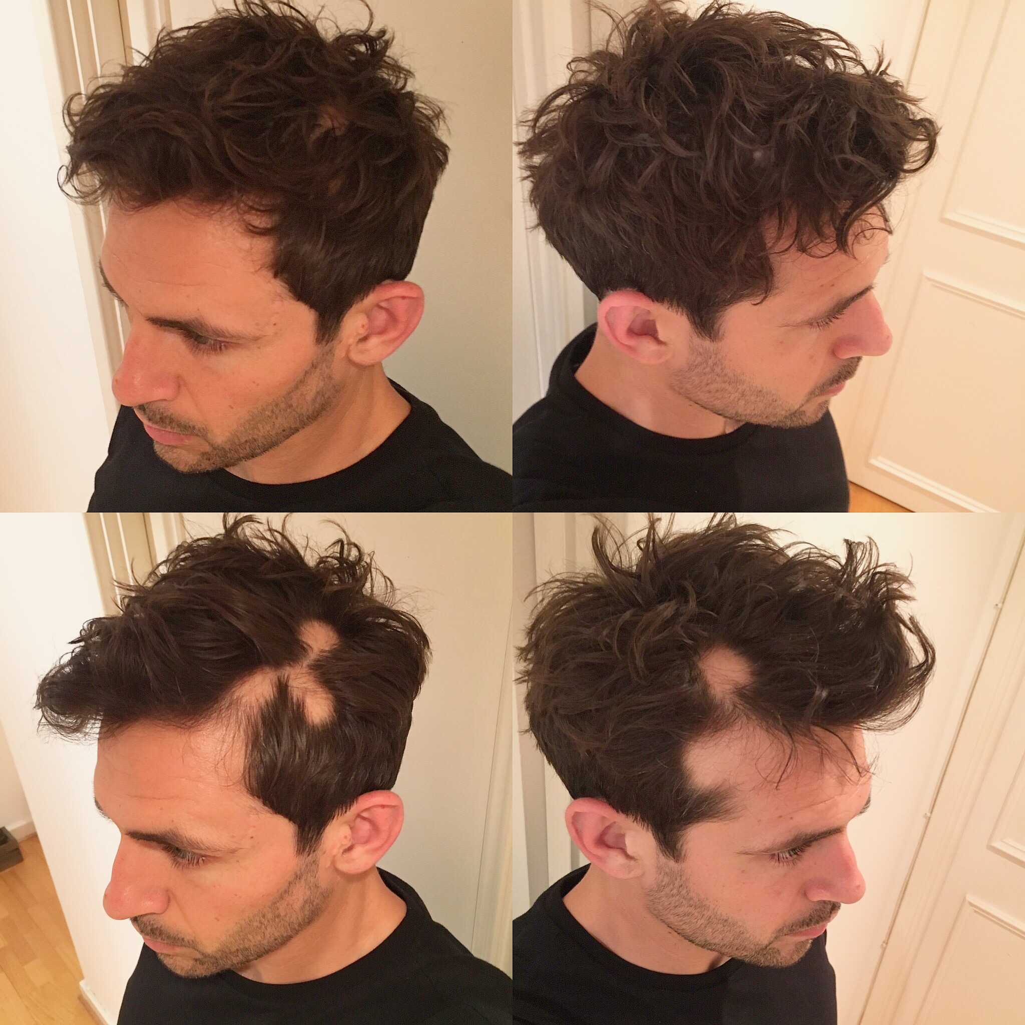 Hair patches before and after arranging hair