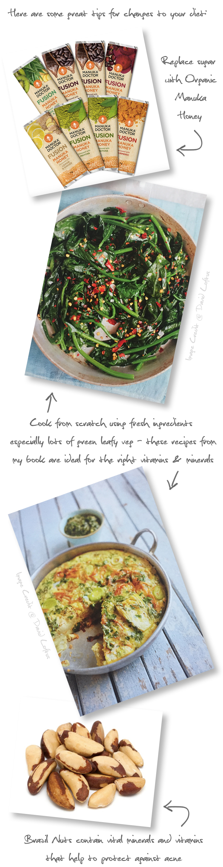ACNE_Food Tips